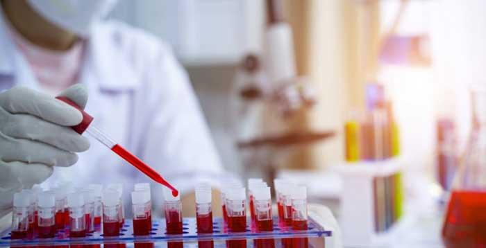 covid-bahrain-plasma-therapy